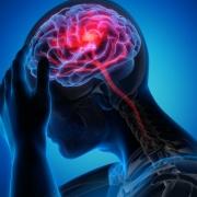Schlaganfall, Blutversorgung im Gehirn
